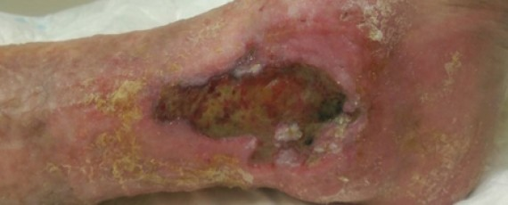 ulcera-venosa-semana-medica